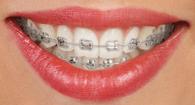 Metāla breketes – Dental Art Klīnika