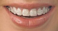 Safīra breketes - Dental Art Klīnika